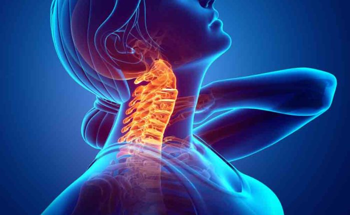 Neck Pain Sol Physical Therapy Performance Training Oakland
